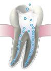 Восстановление зуба из корня