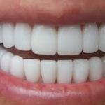 Реставрация зубов: художественная реставрация зубов