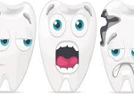 Как лечить кариес зубов?