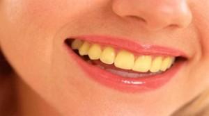 Желтые зубы - причины