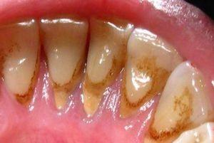 Коричневый зубной налет