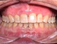 Пародонтит после лечения