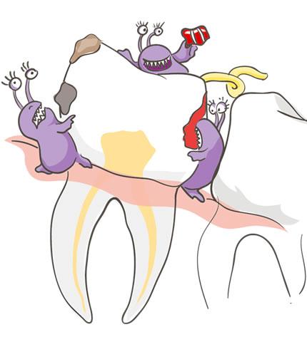 Бактерии на зубе