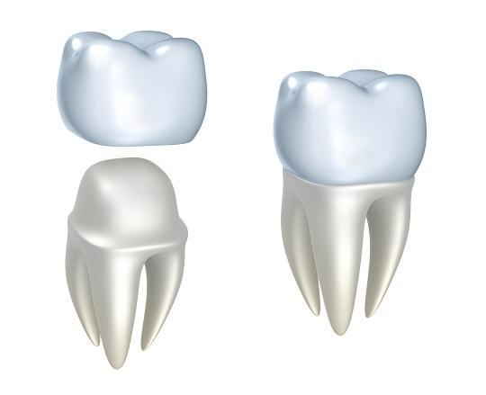 Боль под коронкой зуба