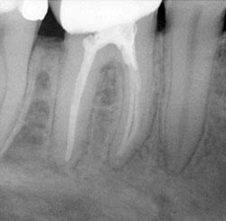 Лечение зубного корня