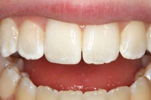Результат реставрации переднего зуба после скола