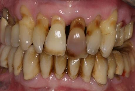 Почернение зубов