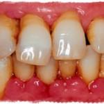 Пародонтоз – болезнь зубов и всего организма