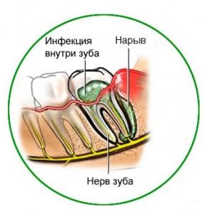Гнойное воспаление десны - лечение