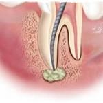 Гранулема зуба: симптомы и лечение гранулемы