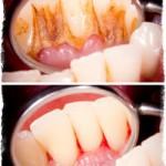 Кровоточат десны при чистке зубов — лечение