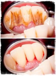 Кровоточат десны после чистки зубов