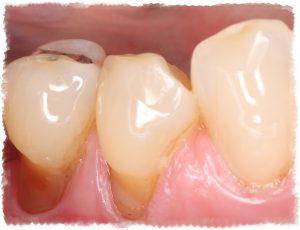 Оголение шейки зуба фото пример