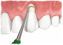 Причины оголения шейки зуба