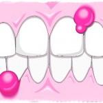 Гной из десны около зуба, лечение
