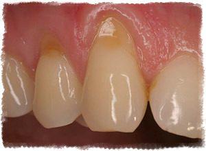 Причины оголения шейки зуба и лечение в домашних условиях