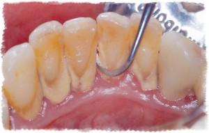 Удаление зубного камня при лечении против кровотечения десен