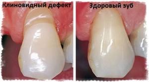 Разница между здоровым зубом и зубом с клиновидным дефектом