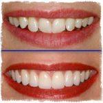 Виниры: цена винира на один зуб