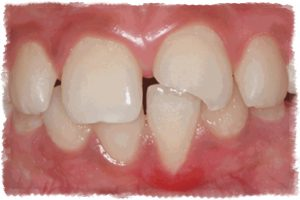 Изготовление виниров при травме зуба