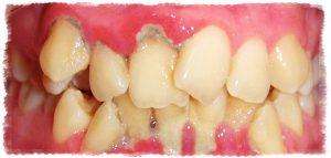 Неправильная окллюзия - противопоказание к имплантации зубов