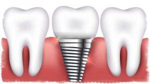 Пример имплантации зуба