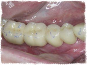 Имплантация зубов - эстетично