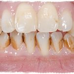 Зубной камень, как избавиться в домашних условиях