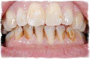 Зубной камень пример